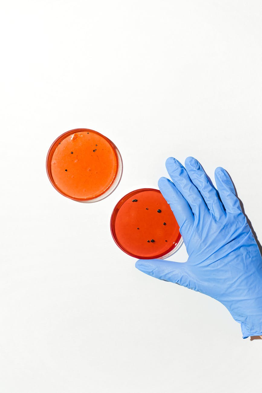 person holding petri dish
